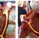 heart-6-atrial-structures