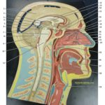 midsagittal-head-plaque-1