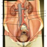 urinary-system-plaque